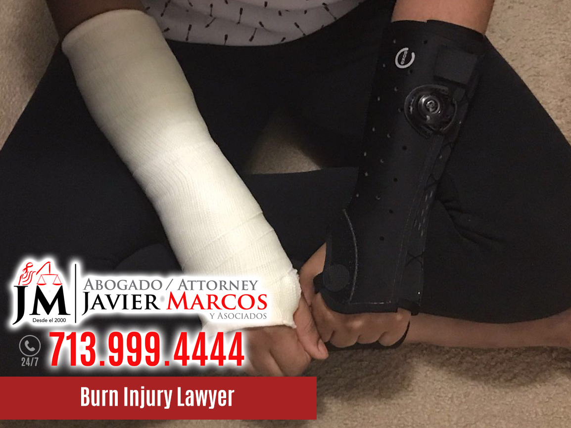 Burn Injury Lawyer | Attorney Javier Marcos | 713.999.4444