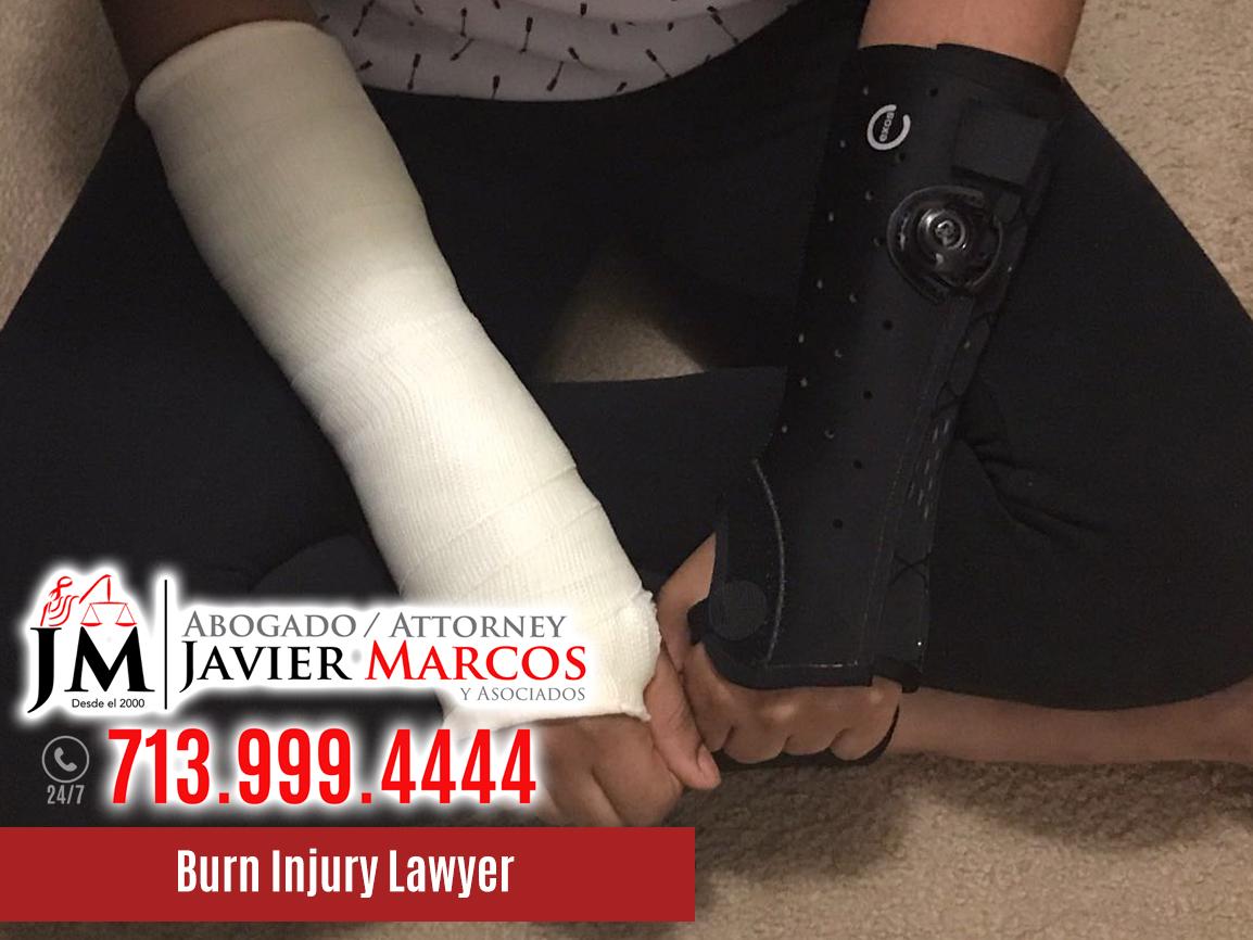 Burn Injury Lawyer | Attorney Javier Marcos | 713.999.4444