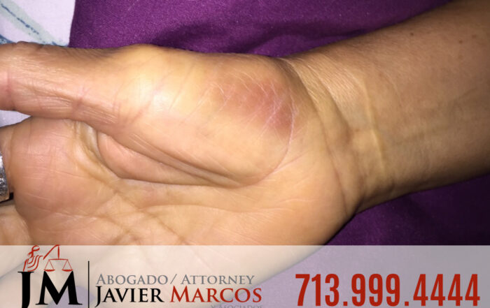 Injured at work | Attorney Javier Marcos | 713.999.4444
